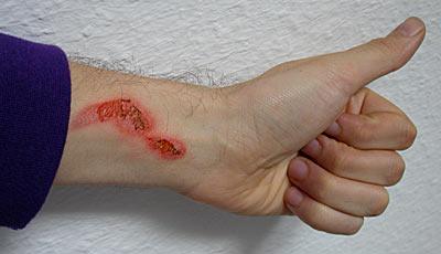 Silvester new year's eve 2006 Berlin burned skin verbrannte Haut