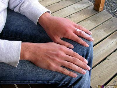 Wasp-Bite-Wespenstich-geschwollene-Hand-swollen-hand-Stardust-Motel-Haines-Junction-Yukon-Canada-DSCN2218.jpg