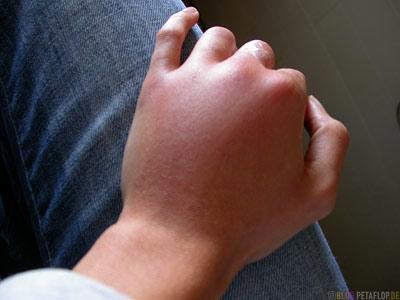 Wasp-Bite-Wespenstich-geschwollene-Hand-swollen-hand-Stardust-Motel-Haines-Junction-Yukon-Canada-DSCN2225.jpg